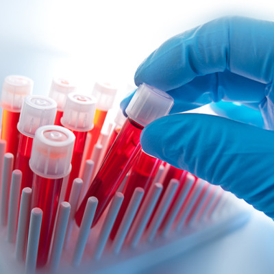 Hand with blood samples