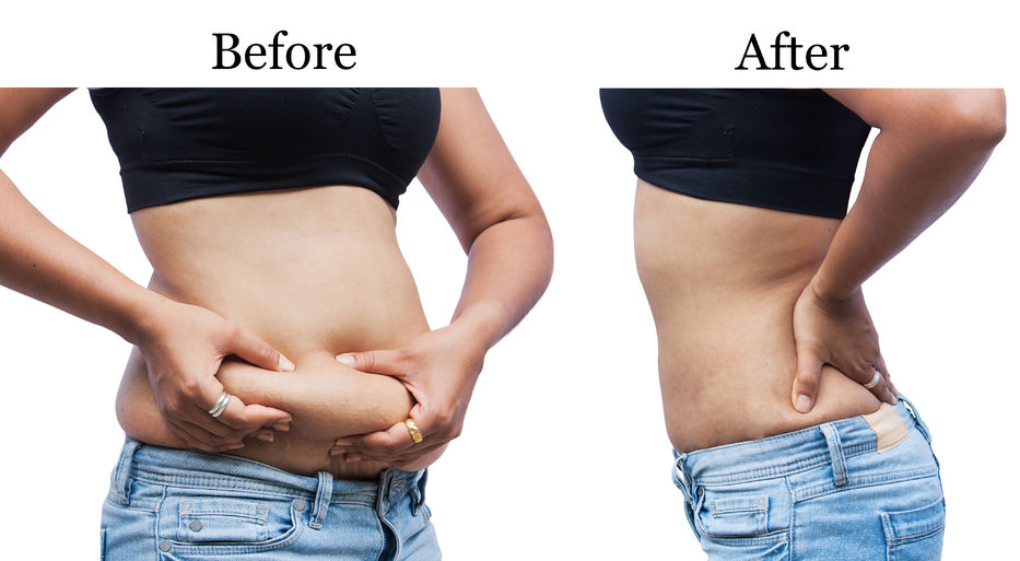 fat-abdomen-Before-and-After